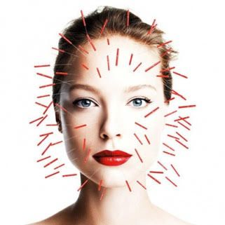 acupuncture-tabac